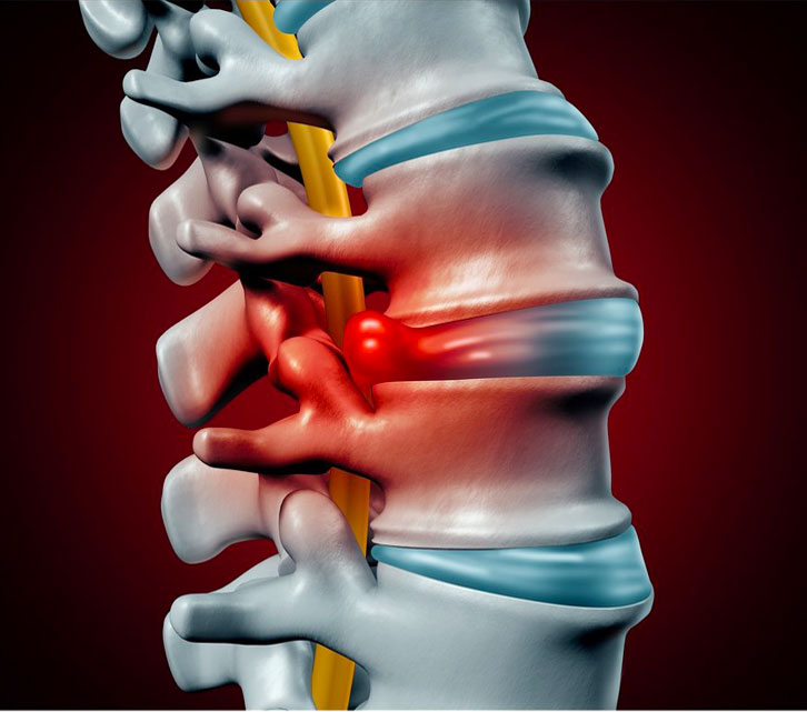 Herniated Disc Overview Herniated Disc Dr.Yashar