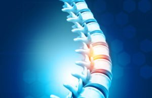 Prevent Spinal Discs from Worsening Before Surgery